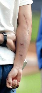 大谷の右腕の手術痕