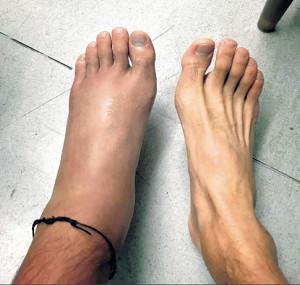 レース翌日、新井康平の左足はパンパンに腫れ上がった(本人のツイッターから)