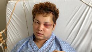 今夏、7時間にも及ぶ大手術を受けた間瀬翔太。手術直後の姿(C)TBS