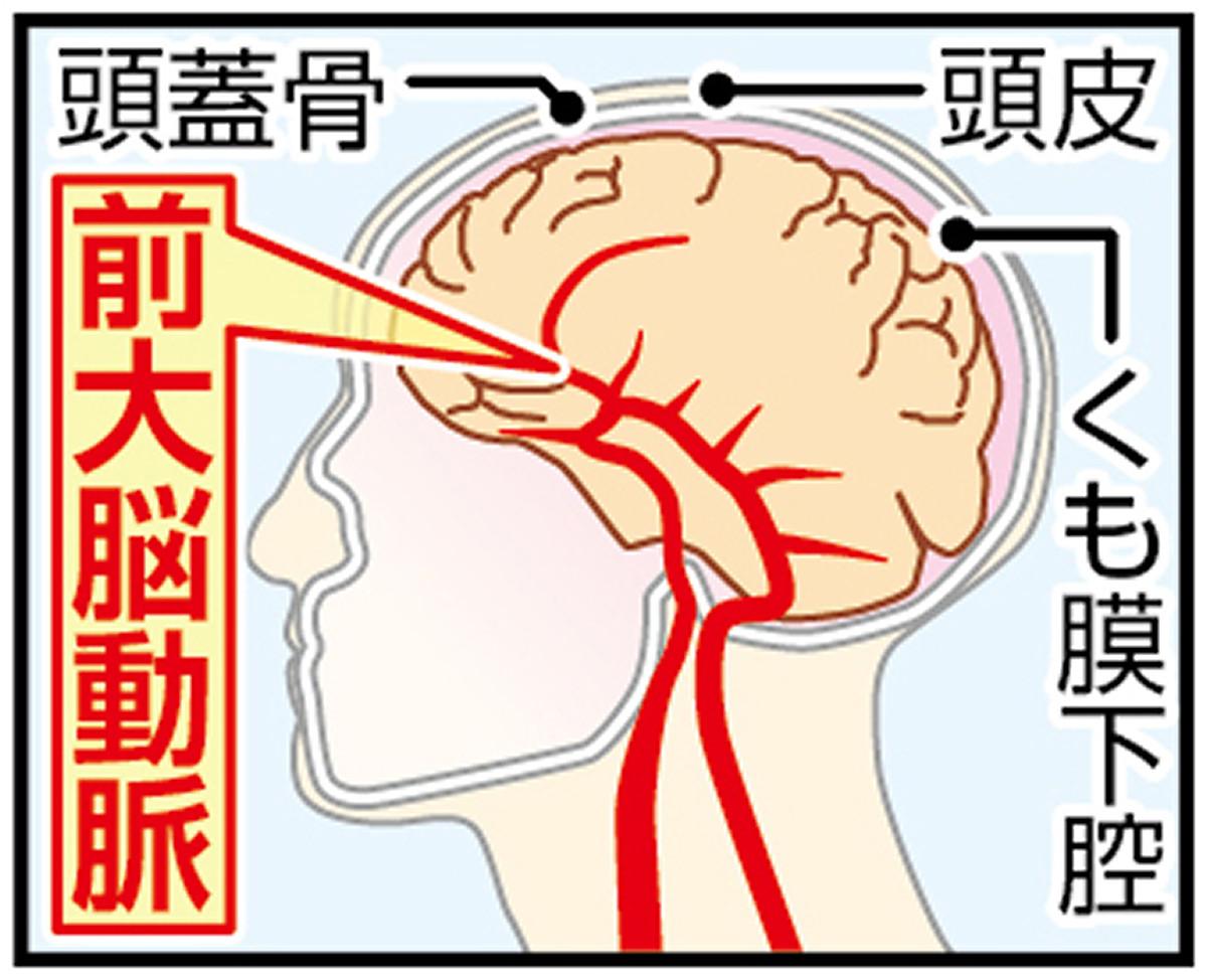 前大脳動脈