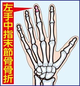左手中指末節骨